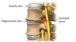 degenerative disc disease - nanaimo chiropractic