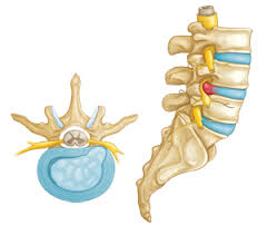 disc herniation - nanaimo chiropractor