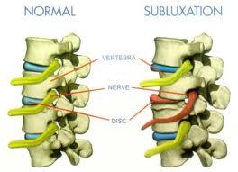nanaimo chiropractor misalignment